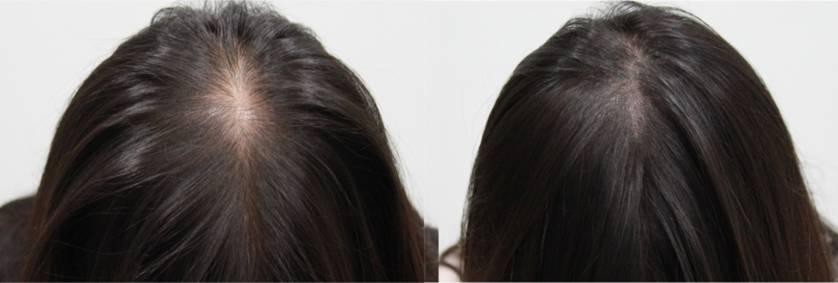 Trich-Pigmentation